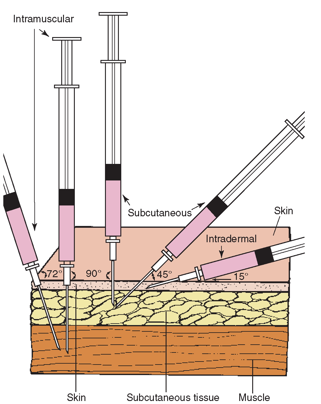 Comparison of the angles of insertion for intramuscular (IM ...
