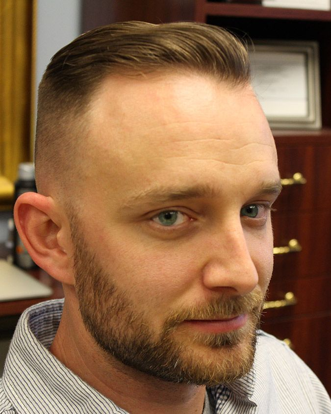 20 Best Hairstyles For A Receding Hairline Extended Haircuts For Balding Men Balding Mens Hairstyles Thin Hair Men