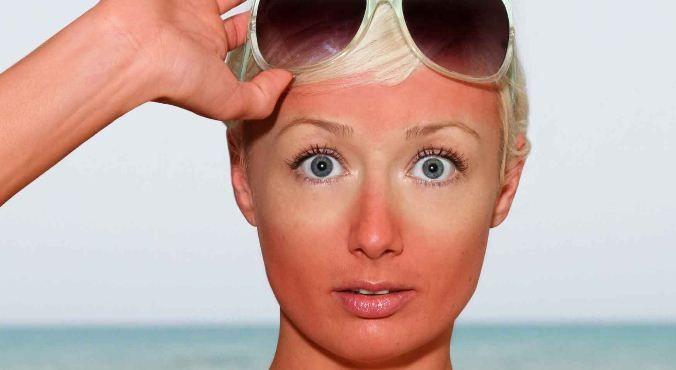 6 Cara Memutihkan Wajah Yang Sunburn Secara Cepat Pemutih Wajah