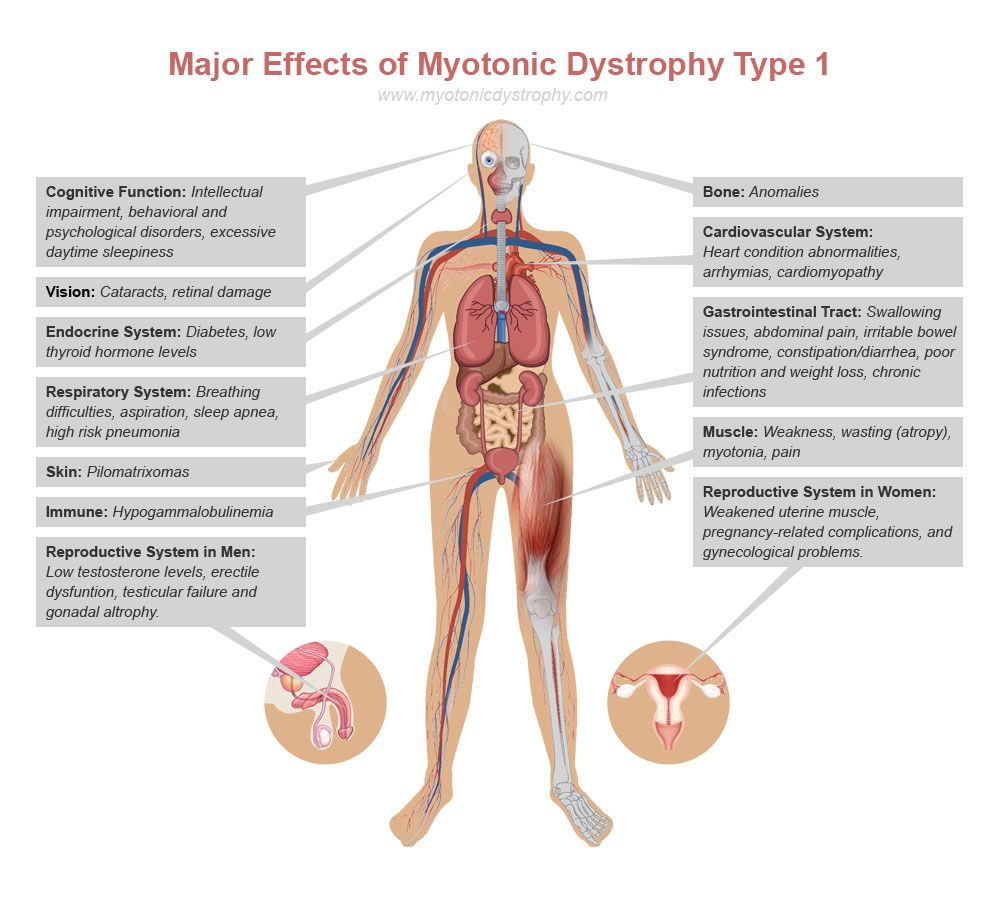 Dystrophy is ... Dystrophy: description, types and features of treatment 7