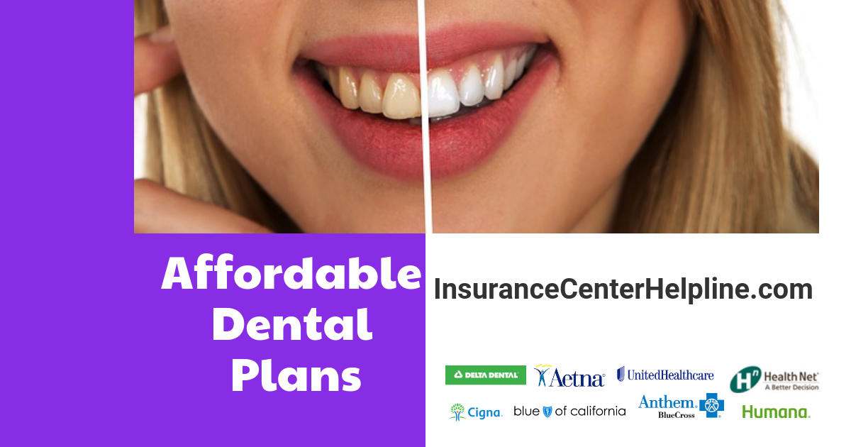 How does the dental insurance work? What is the best