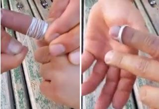 How To Remove A Stuck Wedding Ring With Dental Floss Life hacks