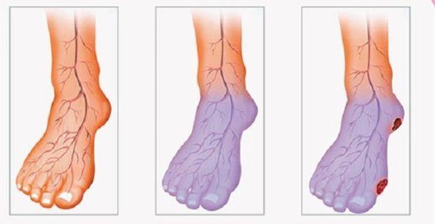 Sin sanguínea circulación fríos pies