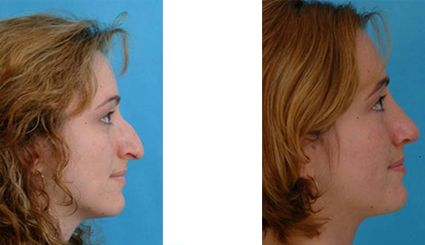 Large Bump and a Hooked Nose | Becker Rhinoplasty Blog