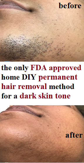 Pin On Permanent Hair Removal Diy