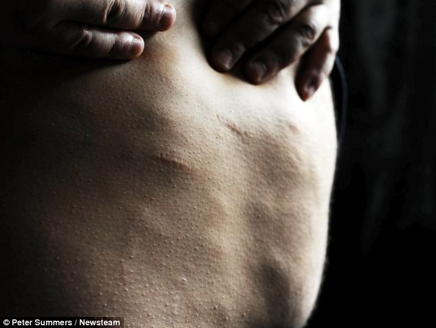 What are some causes of fatty tumors in humans?