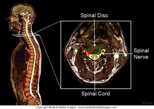 how to fix a herniated disk in your neck