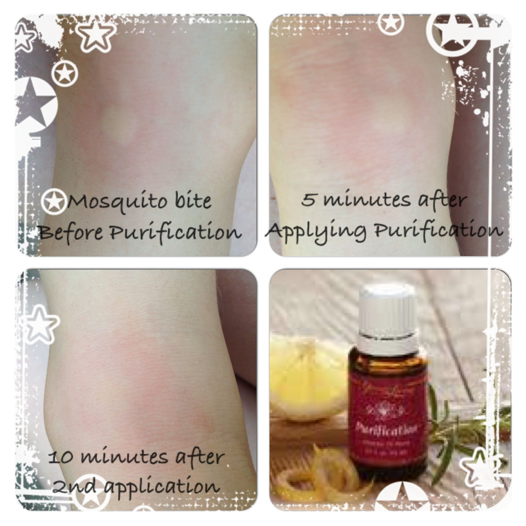 Purification Essential Oil Is Amazing For Bug Bites See More About Bite Fighters Lotion Roll On Whats In Our Natural First Aid Kit Summer Here