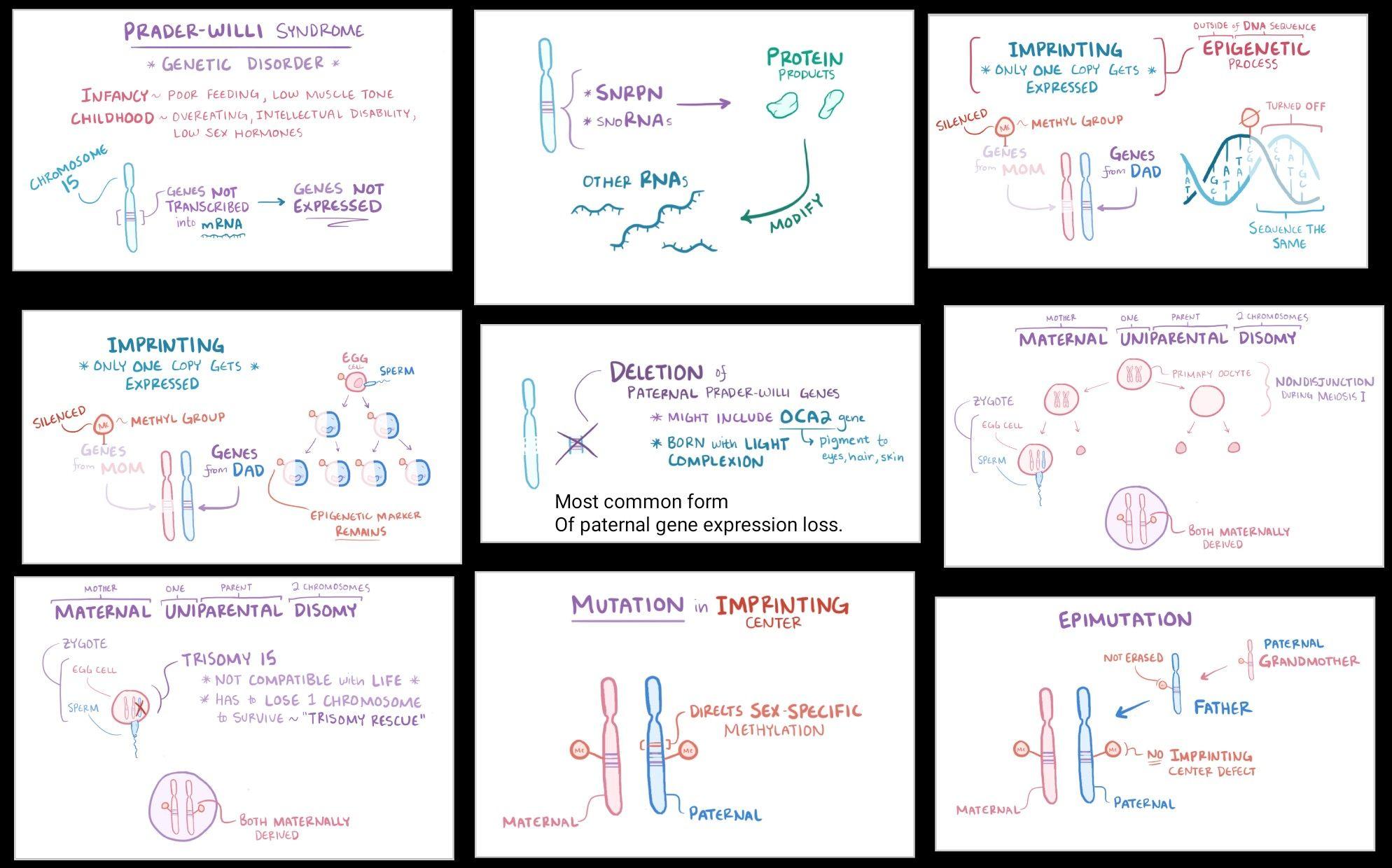 Prader willi syndrome _01 uniparental disomy imprinting epigenetics