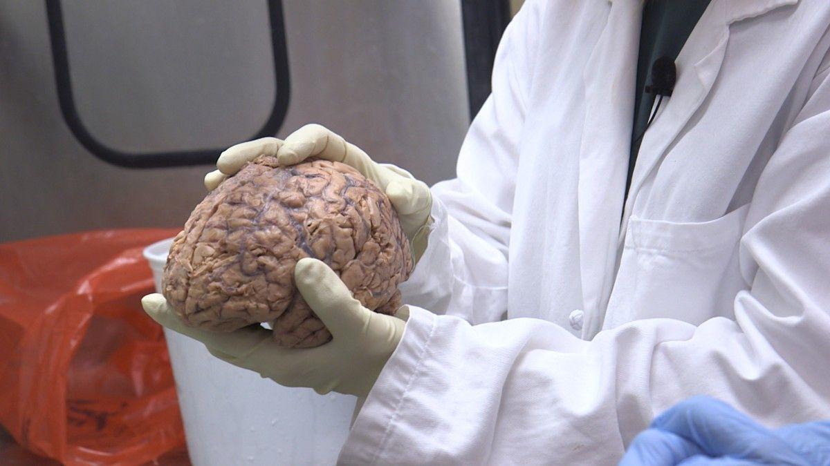 Om du har lyst til å holde hjernen din på toppnivå, bør du ta grep før alderen gjør den tregere. Om det ikke snart kommer en pille.
