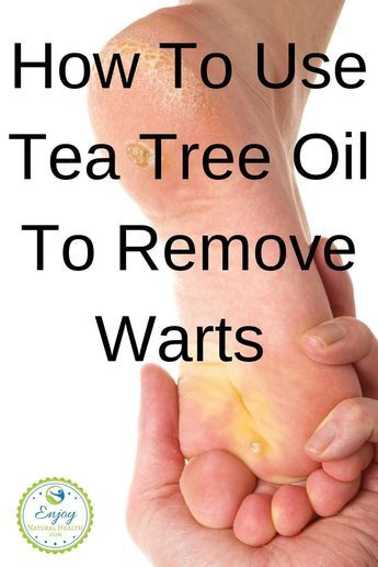 Get Rid Of Stubborn Warts With Tea Tree Oil!