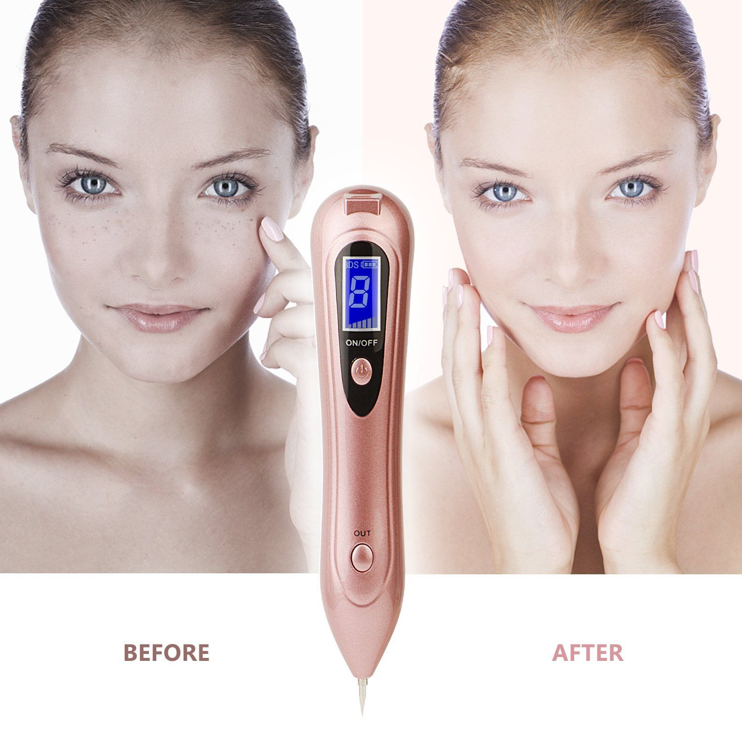 Mole Removal Pen Bdsii Portable Usb Rechargeable Skin Tag Removal