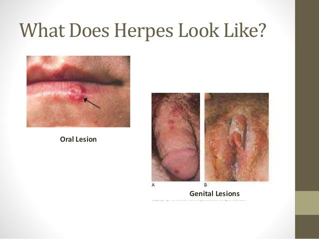 Dating a girl with genital herpes