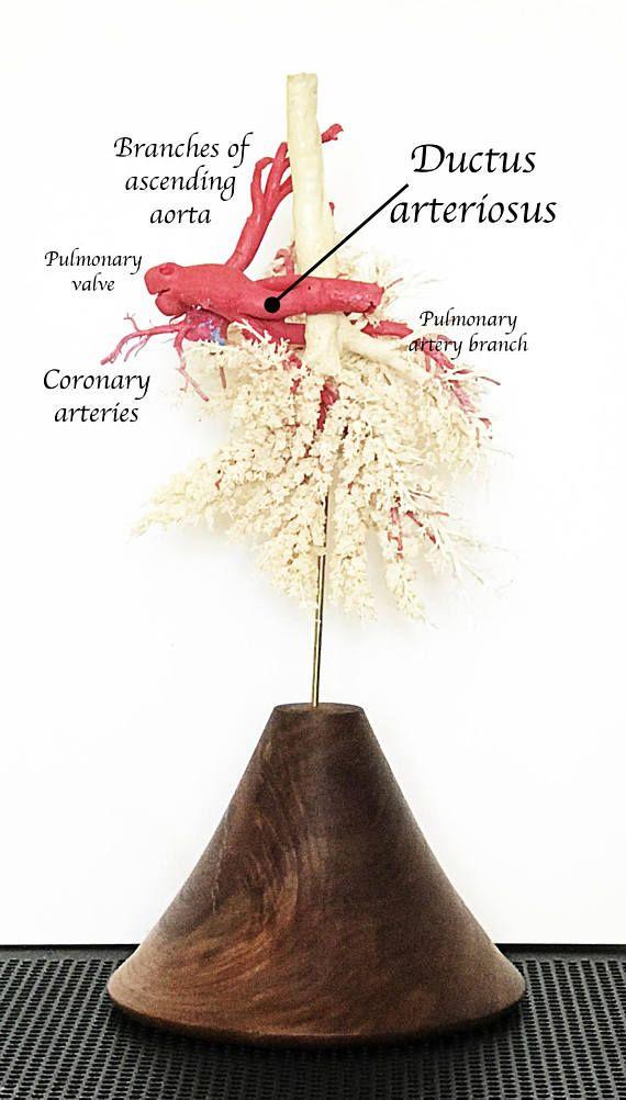 Calf Heart Lung Anatomical Specimen | Corrosion Cast | Blood Vessels ...