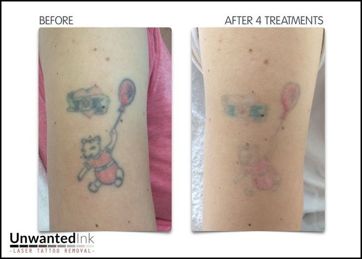 Look for Color Tattoo Removal Before And After? Check Here!Tattoo ...