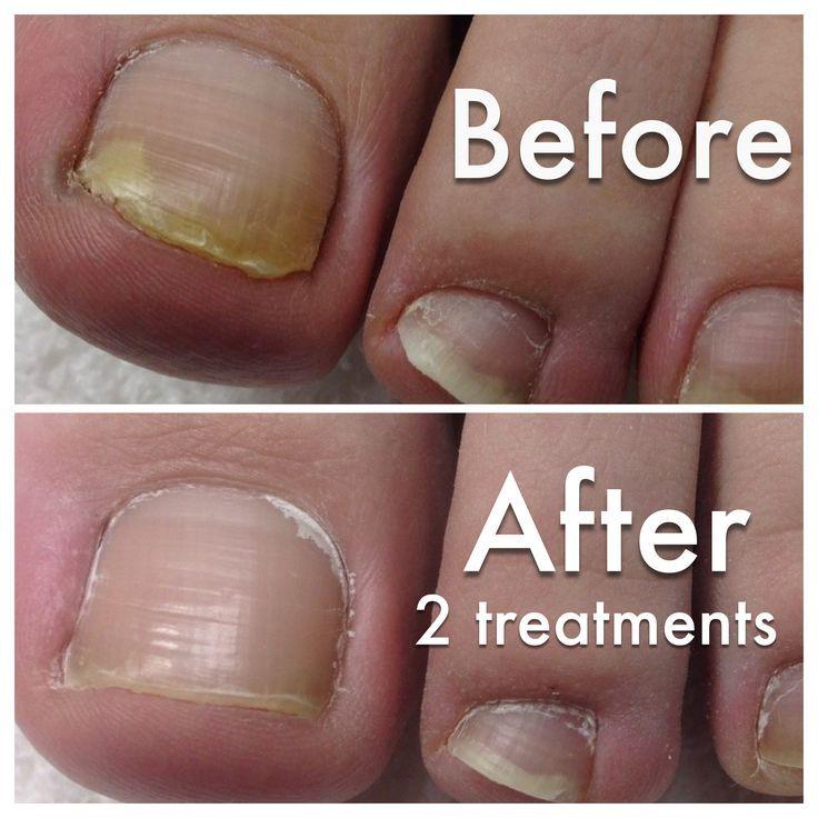 Toe Fungus Laser Treatment | Nail Fungus Severe | Pinterest | Toe ...