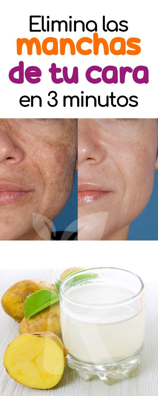 como eliminar las manchas del sol dela cara