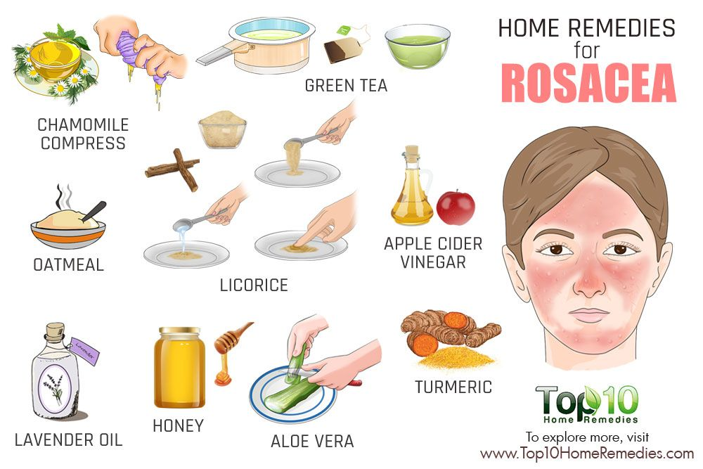 Home Remedies For Rosacea What You Should Use With Images