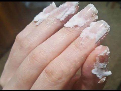 Ponga Bicarbonato De Sodio En Sus Uñas Y Observen Lo Que Sucede Cambiara Su Vida Para Siempre Infección Por Hongos Tratamiento De Uñas Recetas De Belleza