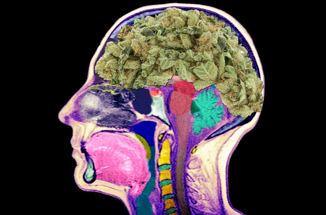 NORML Takes On Media Over Pot Uses And 'Brain Damage' Claim