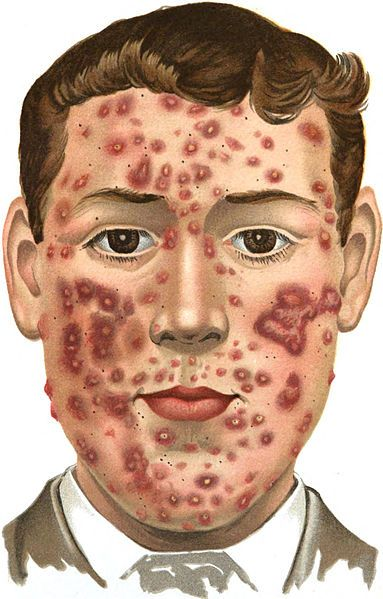 How To Prevent Acne Nodular Natural Acne Remedies Pimples Acne Cure