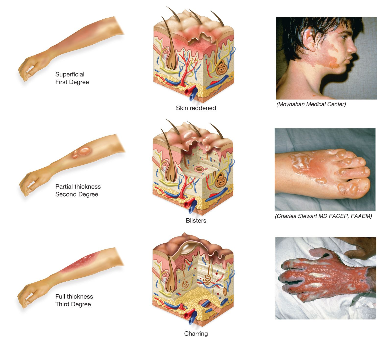 Burns Are Classified According To The Depth Of Tissue Damage Into Degrees First Degree Burns Damage The Epidermis And Damaged Skin Integumentary System Burns