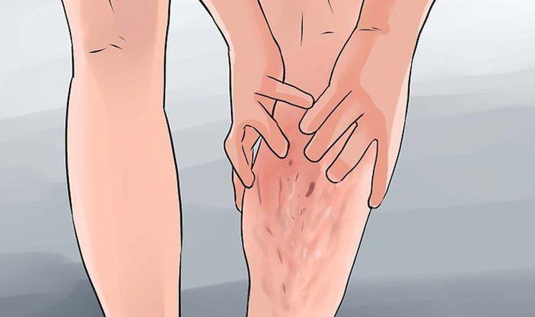 venicoză venă simptome tratamentul cum se vindecă sarea varicoasă