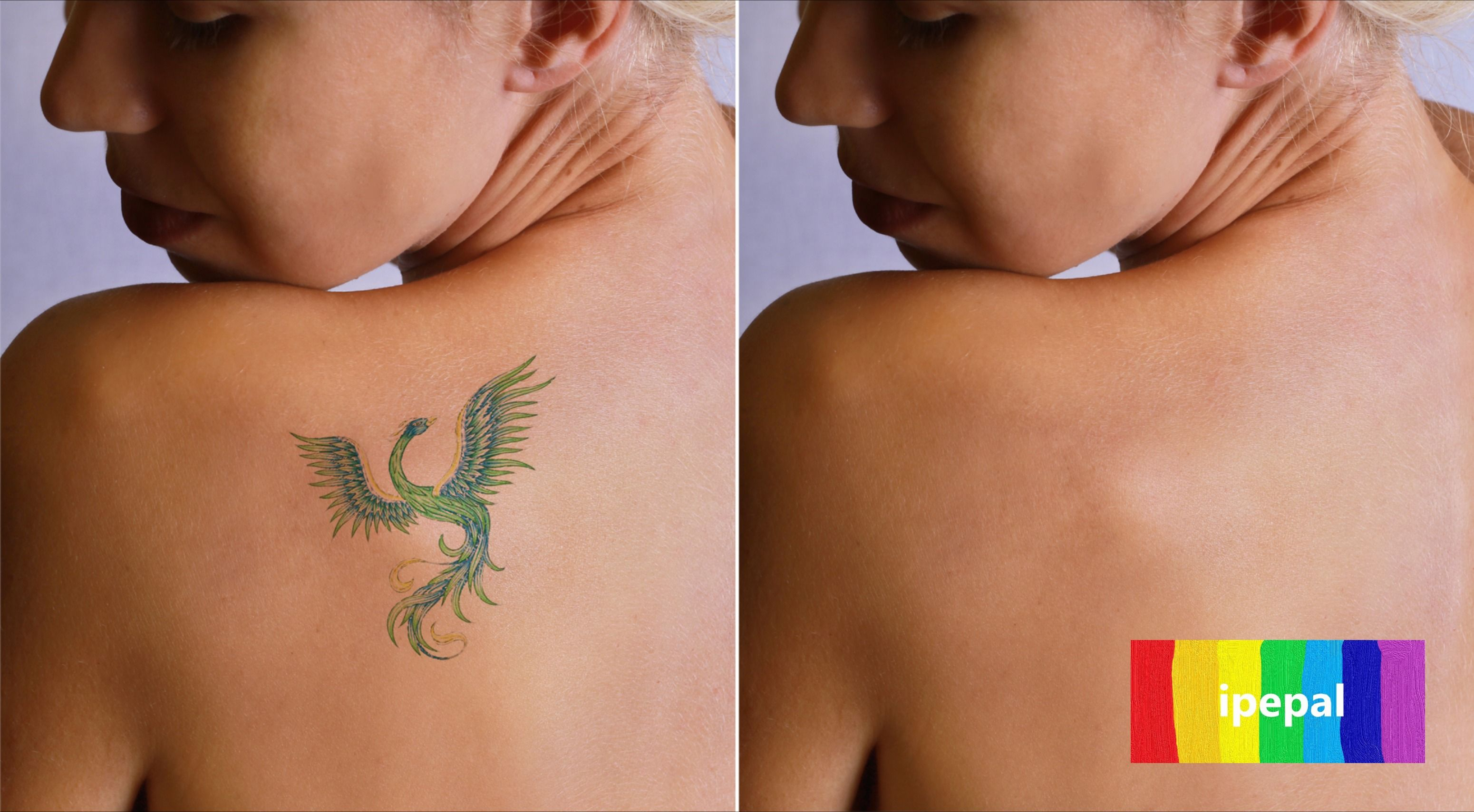 Tattoo Removal in 2020 Tattoo removal cost, Laser tattoo