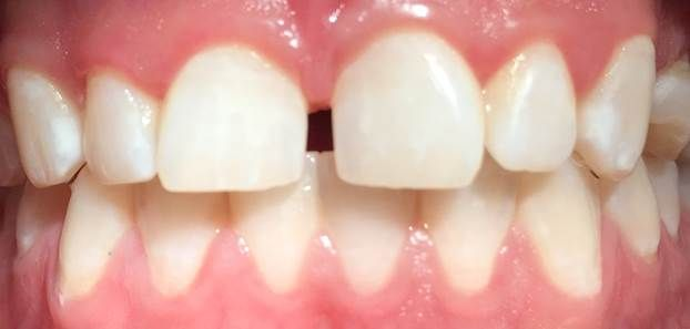 Symptoms Of Malocclusion The Most Obvious Sign Is Teeth That Are Crooked Or Stick Out Some People Have Buck Teeth Called A Dental Care Dental Impacted Tooth