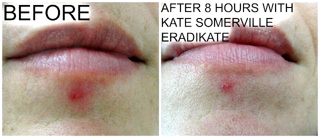 35976feecafdabfcbe51a718665b3c4d - How To Get Rid Of A Huge Zit Overnight