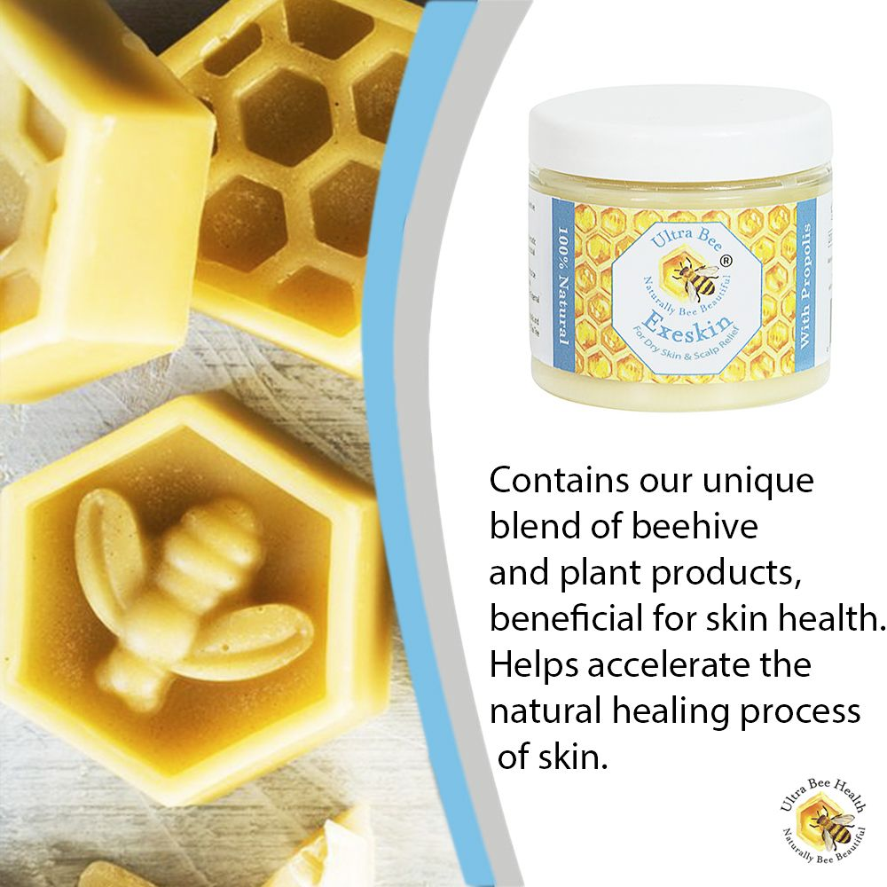 Exeskin Natural Balm For People Prone To Eczema