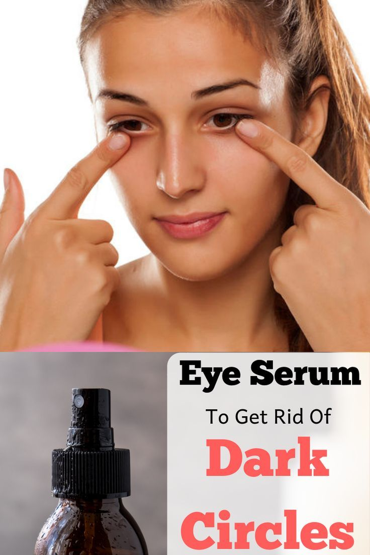 Roll This All Over Your Eyes And Under Eye Dark Circles Will