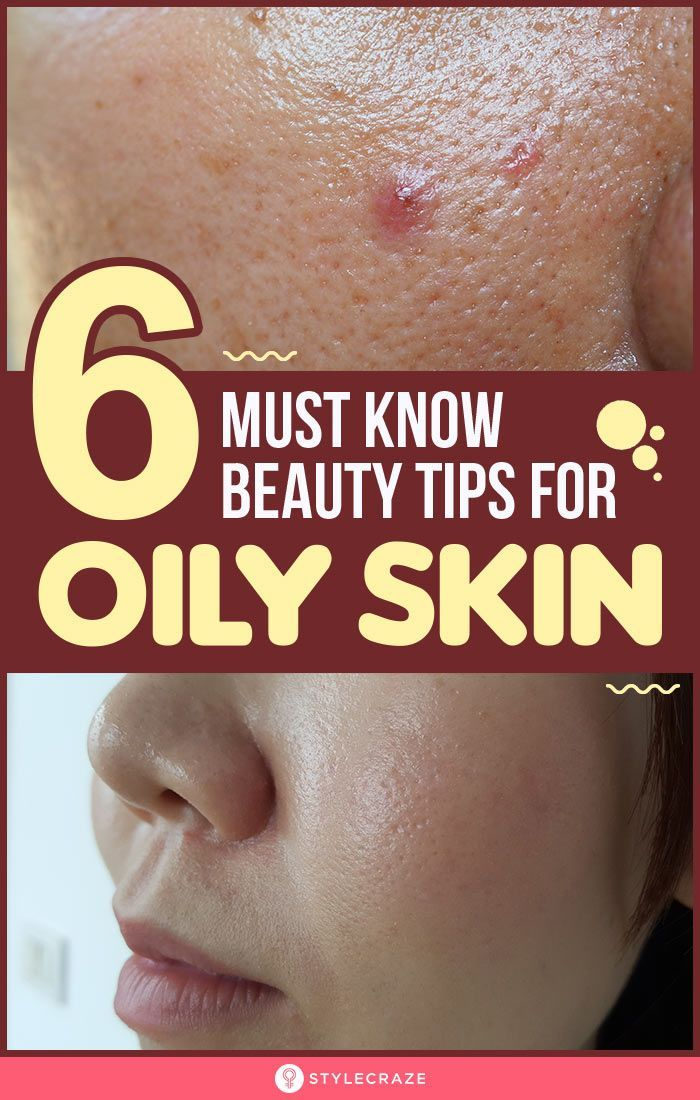 6 Must Know Beauty Tips For Oily Skin Largebrownspotsonskin Treating Oily Skin Tips For Oily Skin Control Oily Skin
