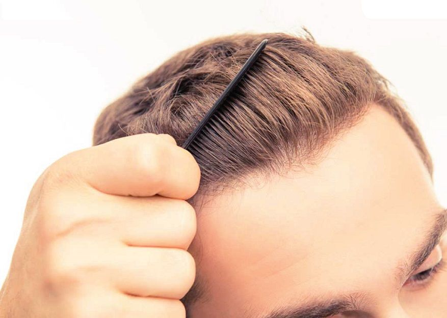 ربما يفقد الكثير من الشباب شعرهم بسبب التعرض لمرض ما يصيب الرأس أو فروة الرأس مثل داء الثعلبة المعروف فالإصابة به تؤدي إلى فقدان أجزاء من شعر الرأس أو كله وفي