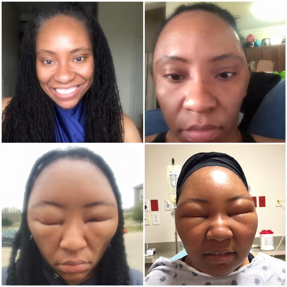 Pics This Woman S Extreme Allergic Reaction Is A Reminder That Not All Henna Is Created Equal Hair Dye Allergy Henna Hair Dyes Black Hair Dye
