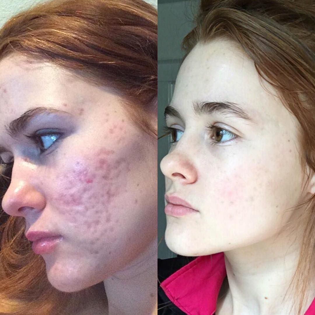 You Need To See These Truly Crazy Dermarolling Before And After Pics Acne Scar Diy Acne Scar Removal Treatment Acne Scar Mask