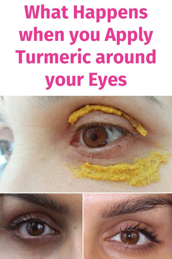 What Happens when you Apply Turmeric around your Eyes ...