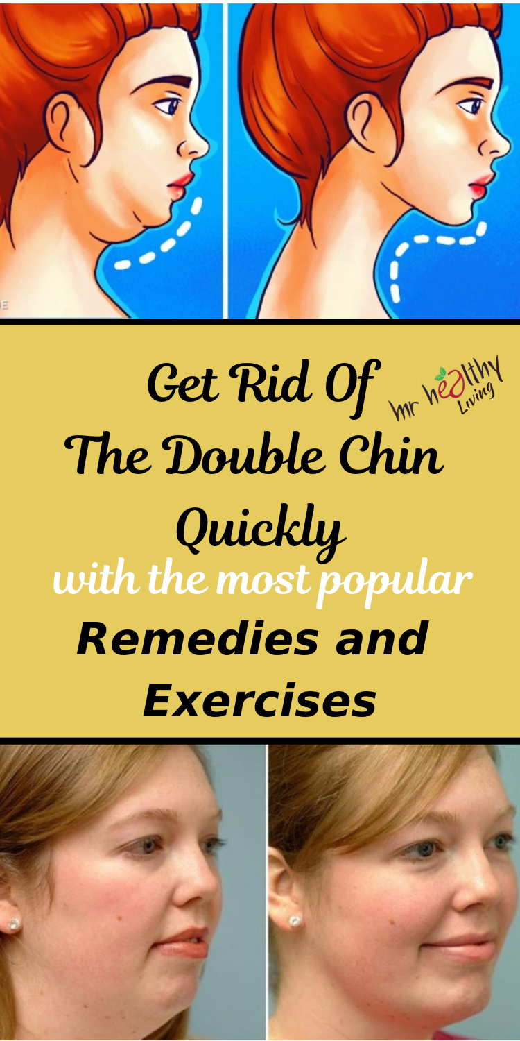 Get rid of the Double Chin quickly with the most popular Home Remedies and Exercises!  Mr Healthy Living is part of Chin exercises - What causes a double chin  A double chin, also known as submental fat, is a common condition occurring when a fat layer is formed below your chin  A double chin…