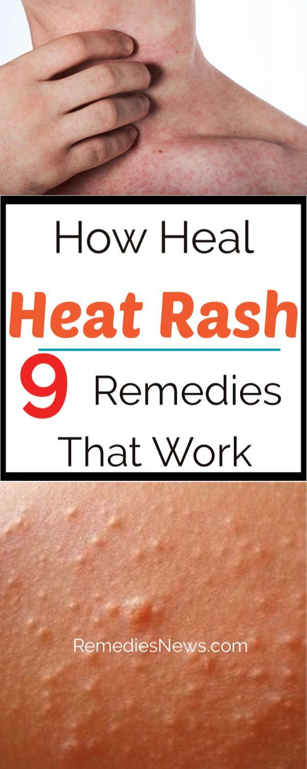 How To Get Rid Of A Heat Rash Quickly