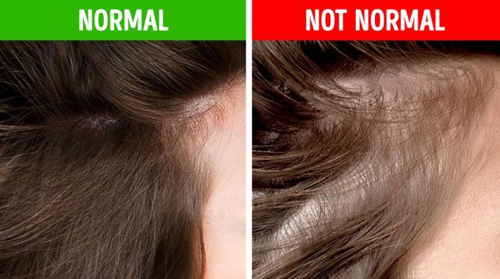Hair remedies Free