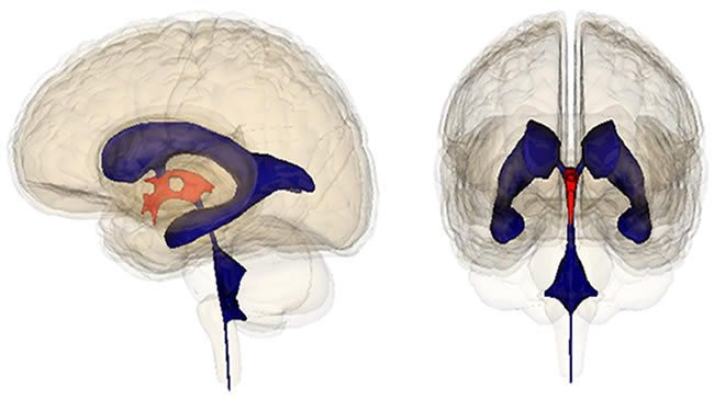 Ventricular system of the human brain with the third ventricle ventricular system of the human brain with the third ventricle shown in orange in a lateral view left picture and in an anterior view right picture ccuart Choice Image
