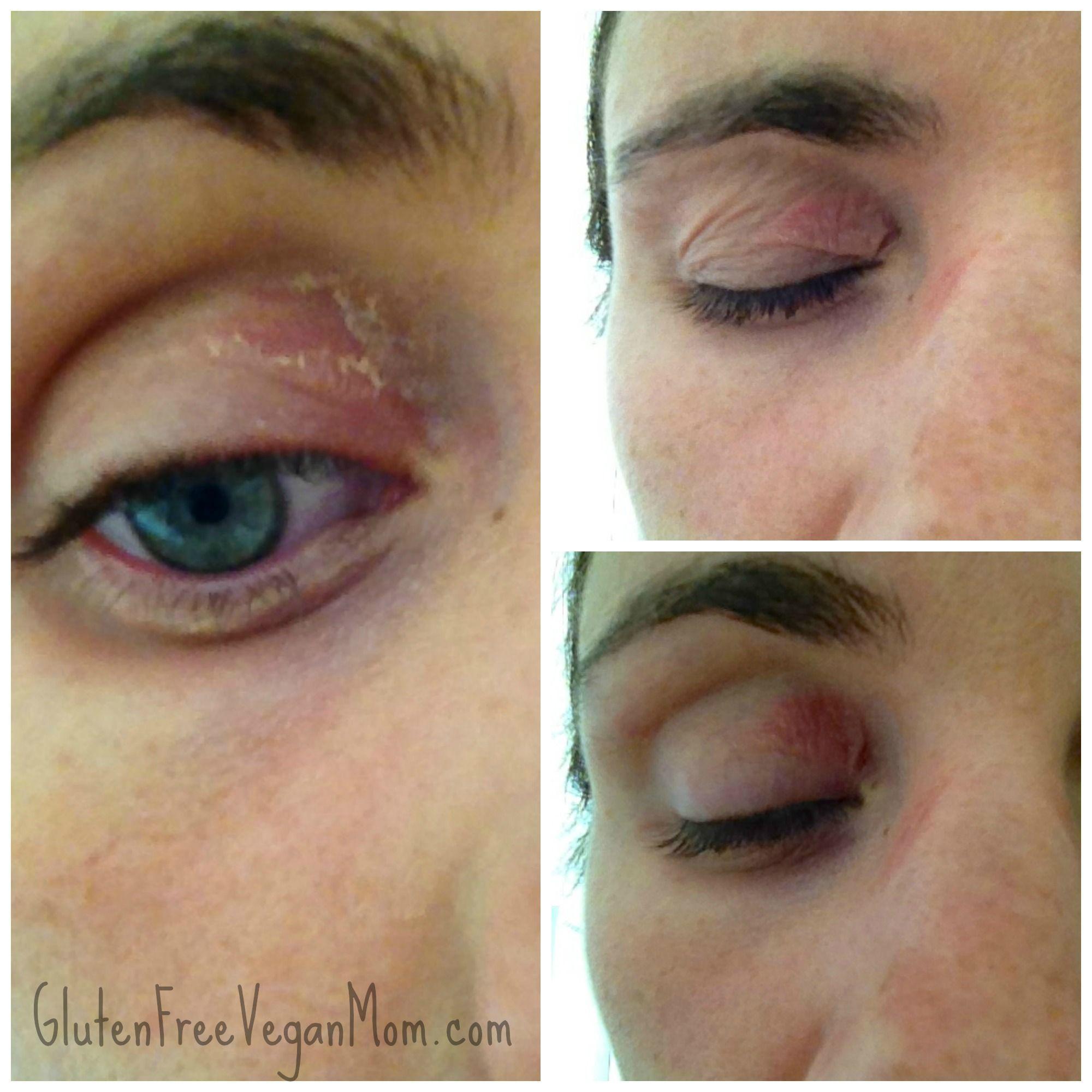 My Nickel Allergy Triggers My Eczema Flareups Nickel In Food