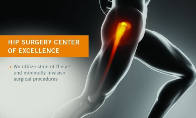 A hip osteotomy is a surgical procedure in which the hip bones are cut, realigned, and fixed in a new position.