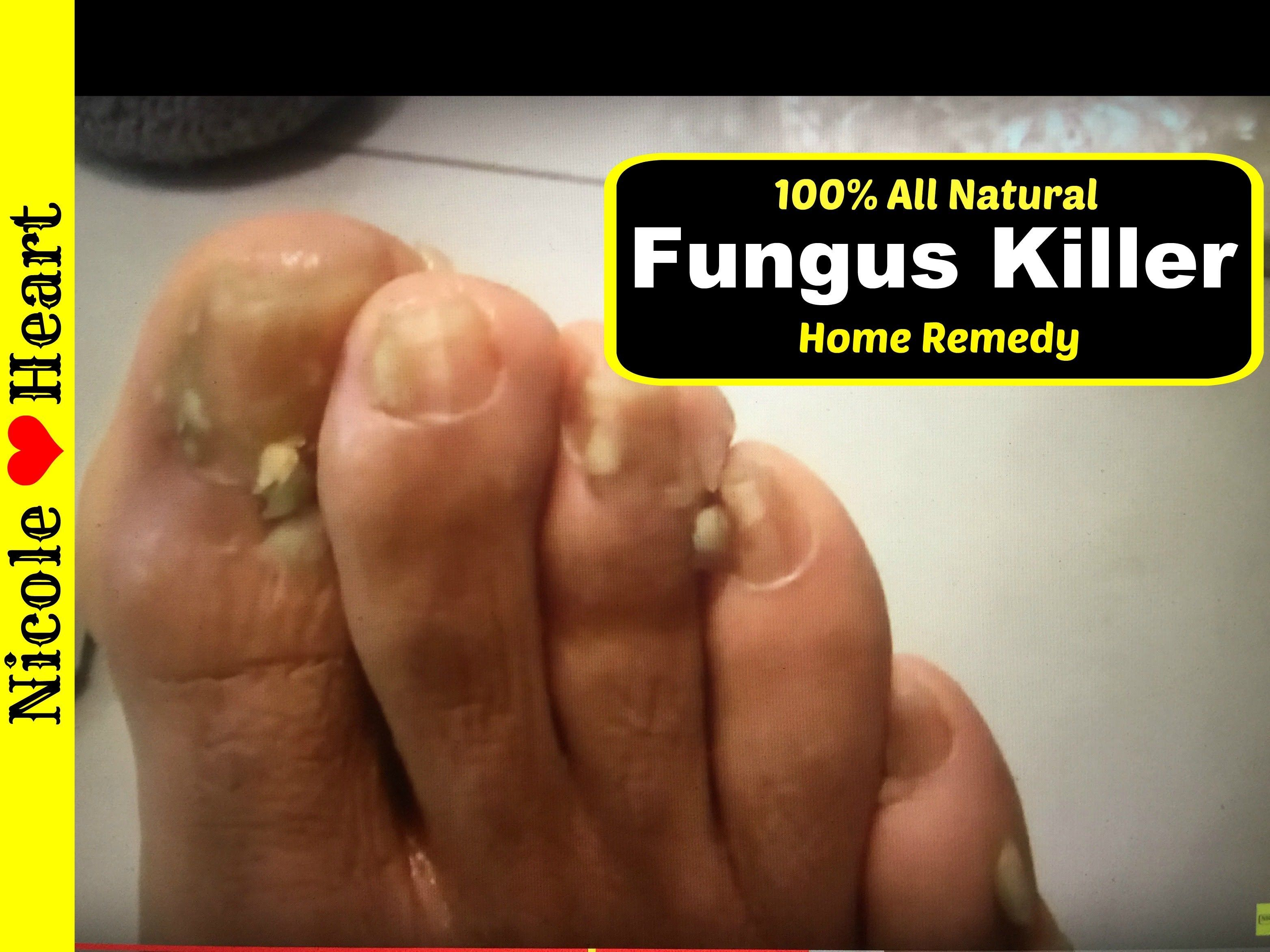Home Remedy For Toenail Fungus Athlete S Foot Natural