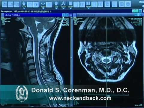 How To Read A Mri Of Lumbar Degenerative Spondylolisthesis