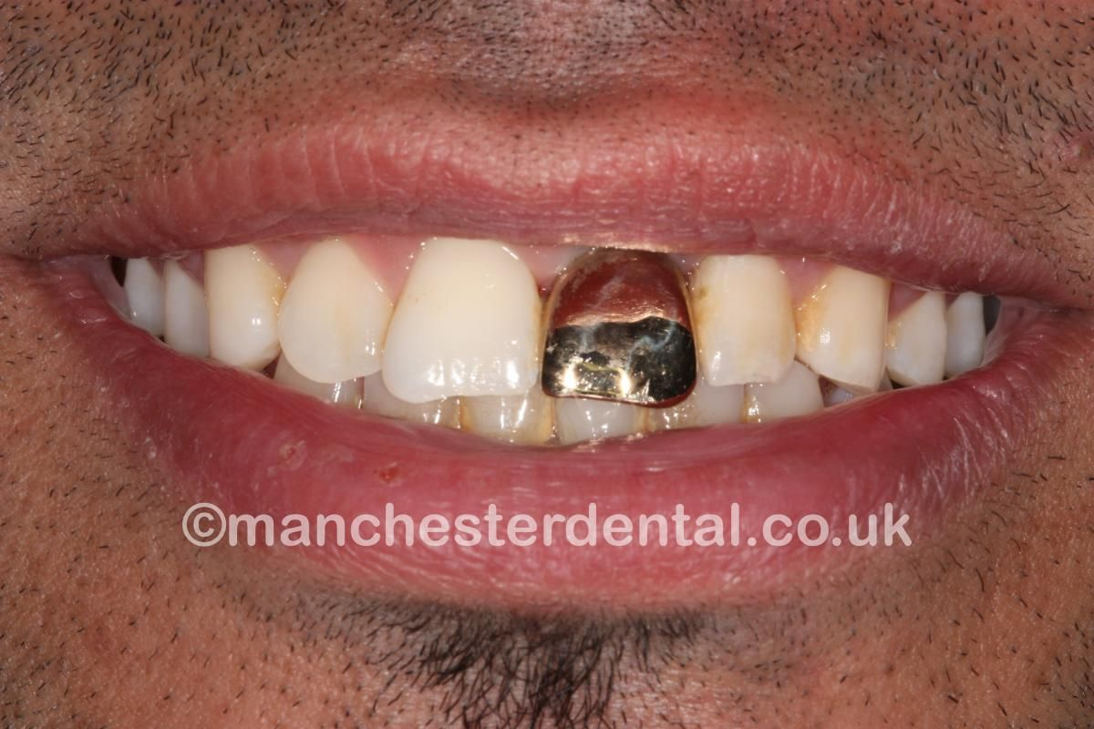 Gold Tooth Implant Modifications To The Body Teeth
