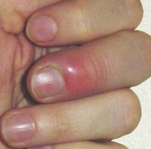 Dog Nails Turning Red