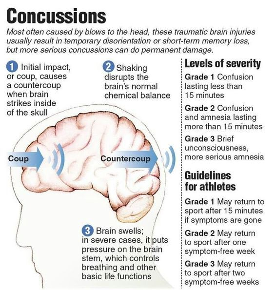 Scary Statistics About Concussions