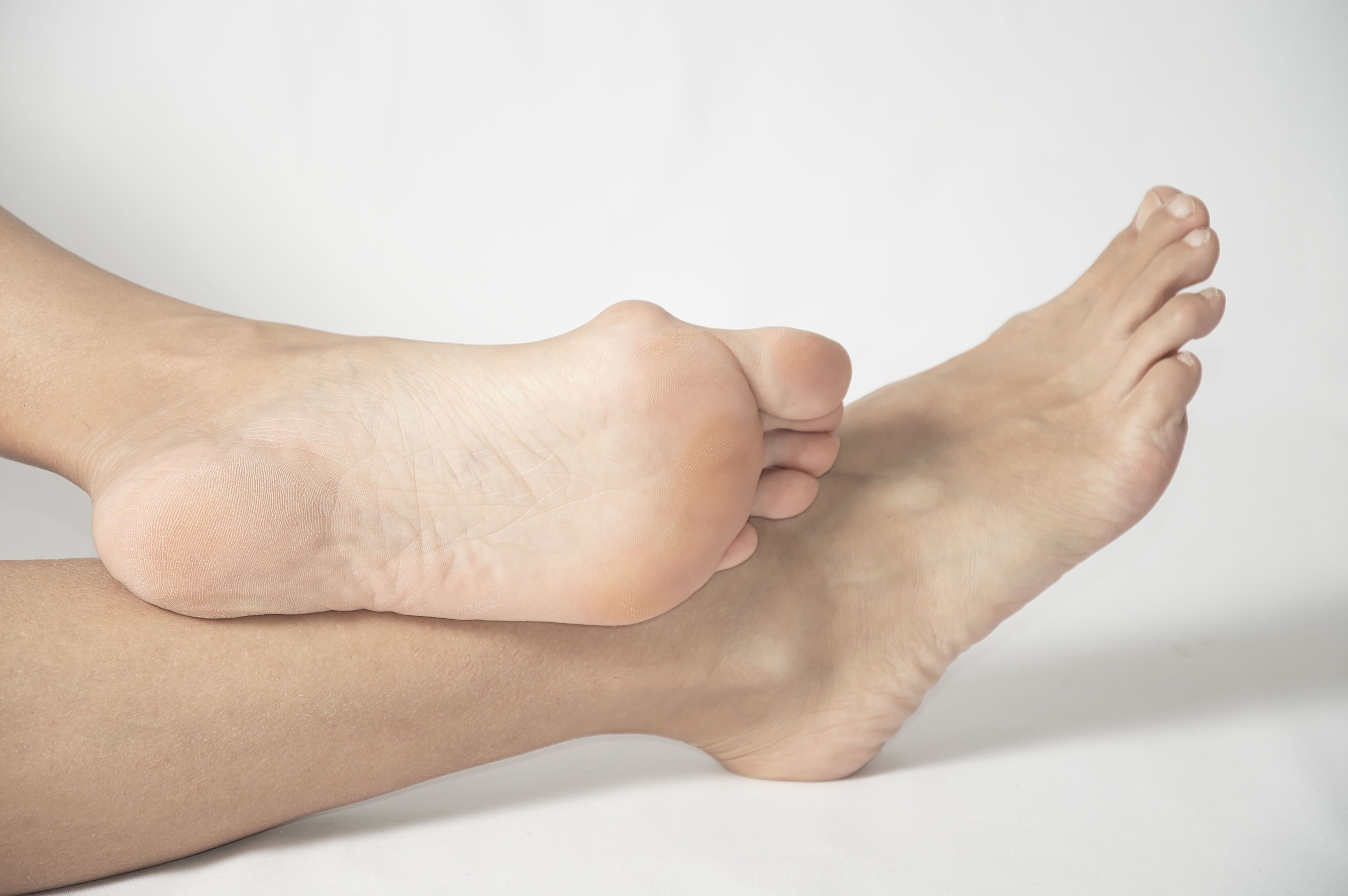 What Causes Bunions? Bunion, Get rid of bunions, Gel toes