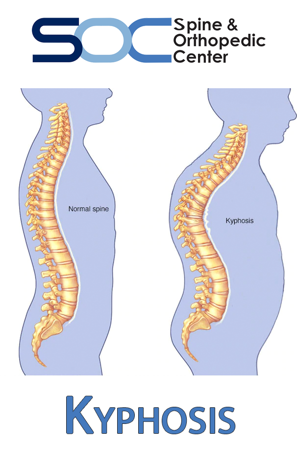 Pin on Back pain Spine Health